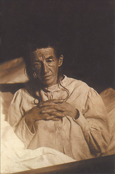 Auguste Deter. Alois Alzheimer's patient in November 1901, first described patient with Alzheimer's Disease.